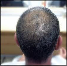 CHI 44 Ionic Power Plus от Выпадения волос - Набор ЧИ Пауэр Плюс от выпадения натуральных волос